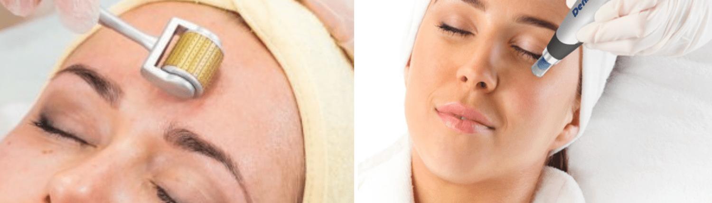 Verschil tussen dermaroller en dermapen happy skin