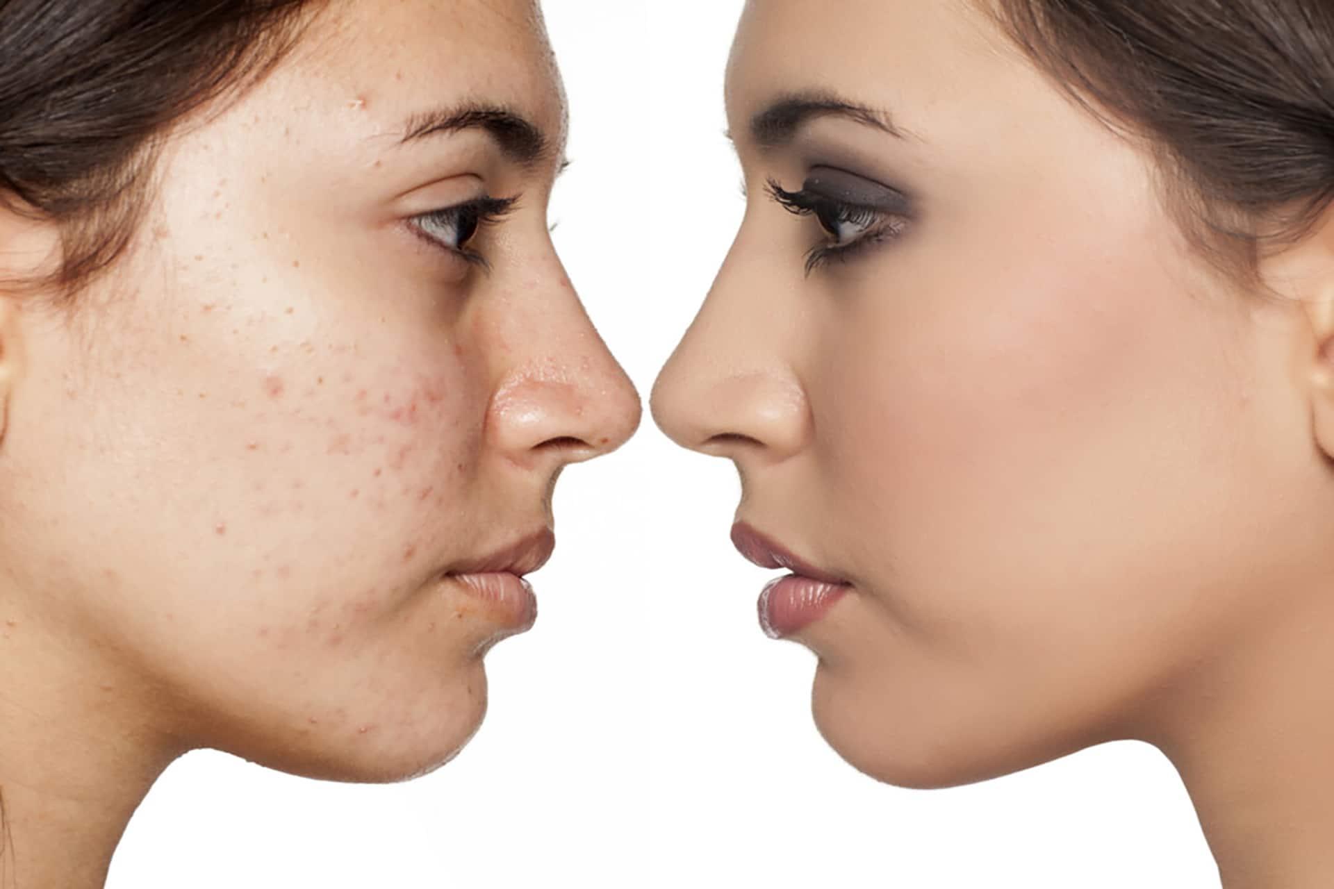 acnenehandeling